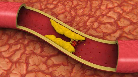 000019 Cholesterol